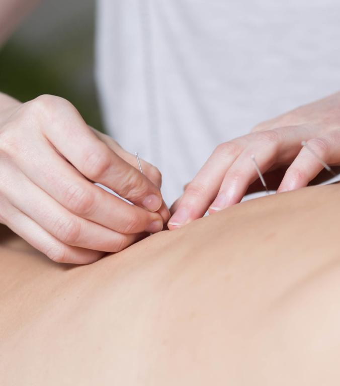 Foto Akupunktur im Therapiezentrum Brig